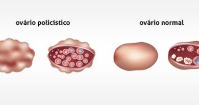 ovarios-policiticos